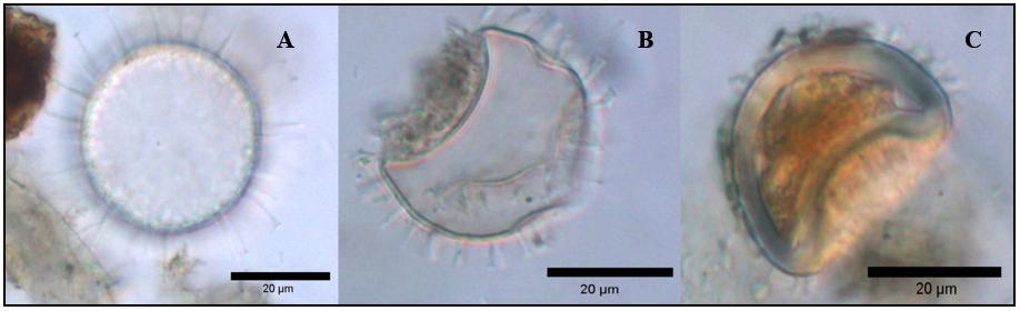 Joonis 3. Erineva jätkepikkusega Protoceratium reticulatum`i puhkestaadiumid (autori fotod).
